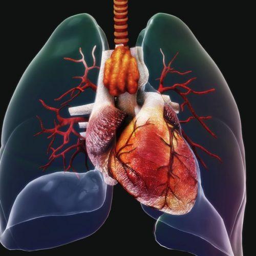 Liver cancers ( Hepatocellular carcinoma)